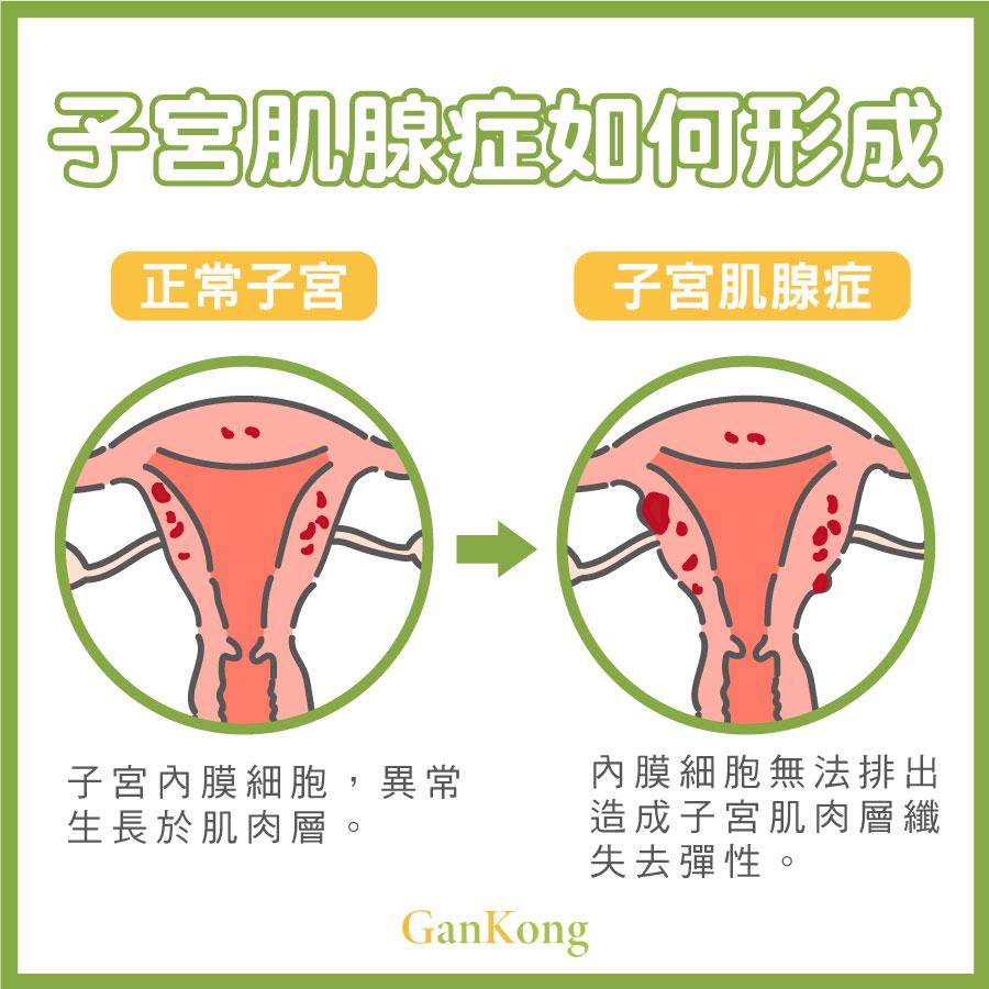子宮肌腺症如何形成