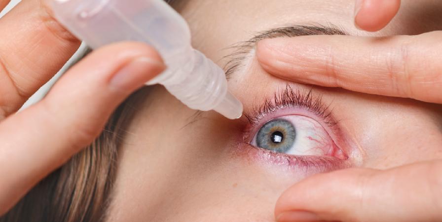 乾眼症是什麼,吃葉黃素有效嗎