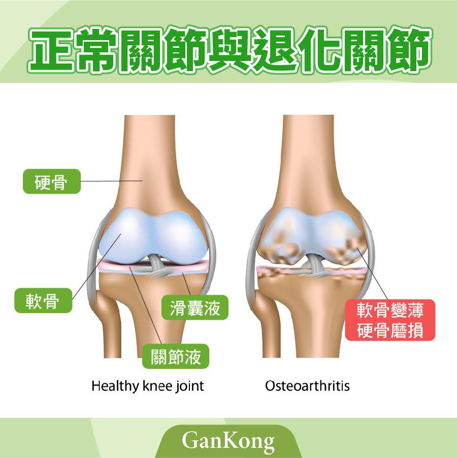 正常關節與退化性關節炎